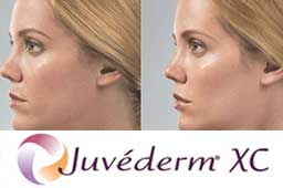 Injectables & Fillers Charleston SC   Dr Hochman