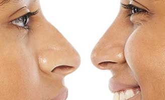 Rhinoplasty (Nose Surgery)