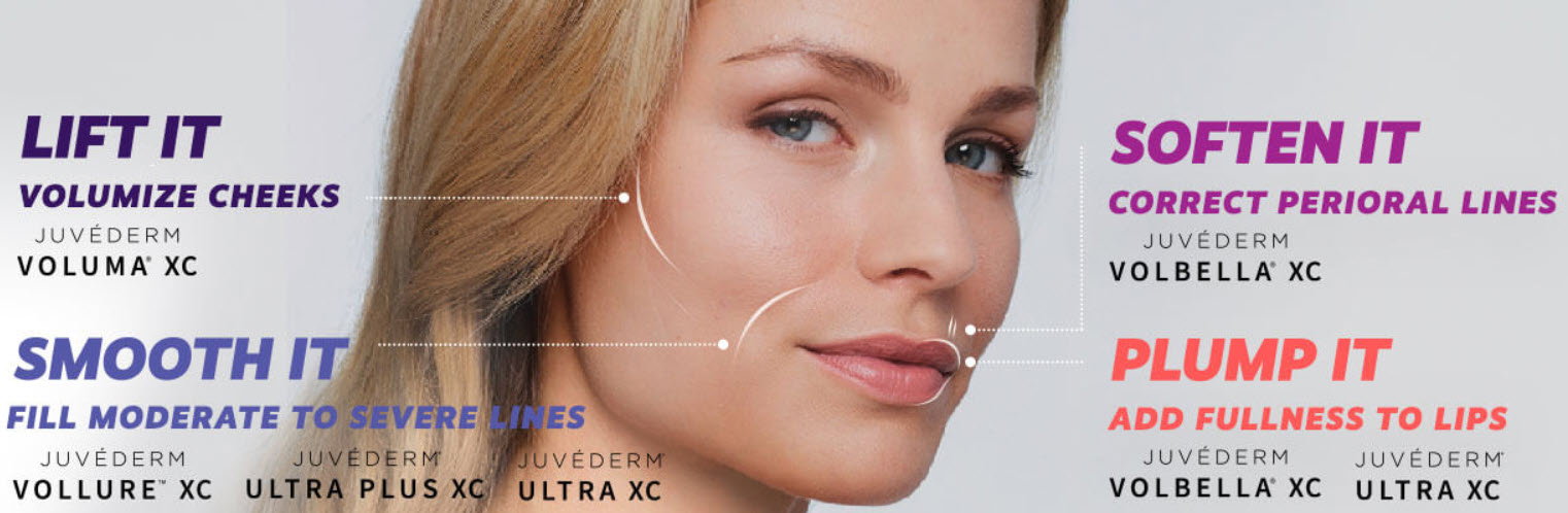 Juvederm results