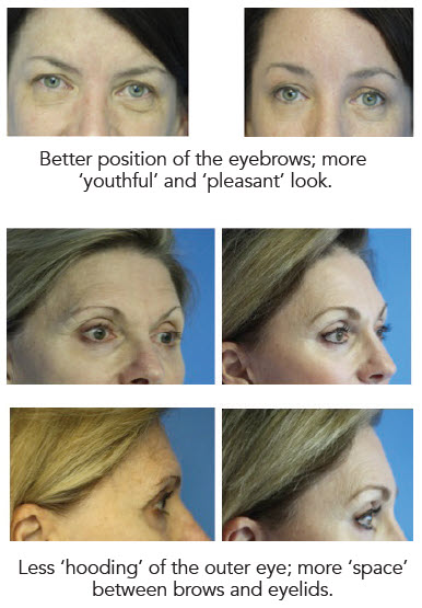 browlift examples