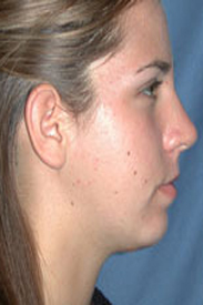 chin implant after