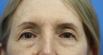 upper eyelift and browlift before